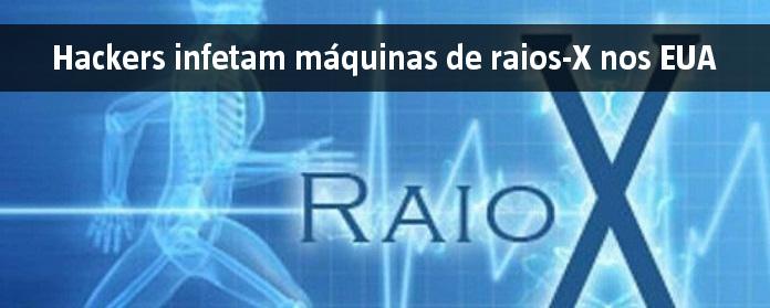 Hackers infetam máquinas de raios-X nos EUA